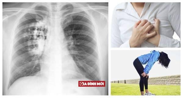 dấu hiệu của bệnh phổi