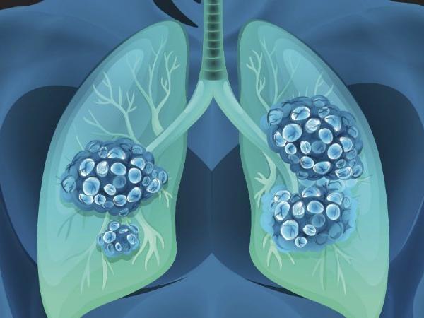 phổi người