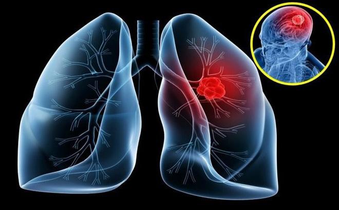 ung thư phổi ở người