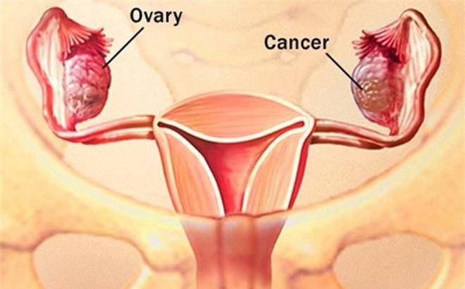 bệnh phụ khoa ở phụ nữ