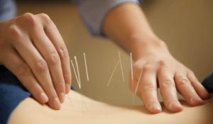 Phương pháp chữa viêm khớp dạng thấp bằng châm cứu